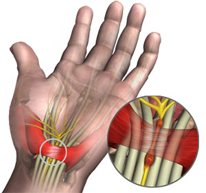 Endoscopic Carpal Tunnel Syndrome Sydney Nsw Carpal Tunnel