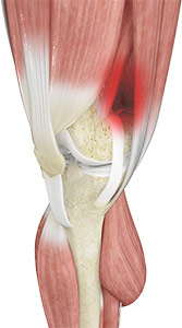 Iliotibial Band Syndrome