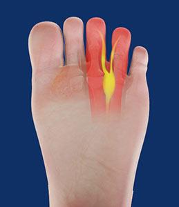 fe18cb1a4e Morton's Neuroma Sydney, NSW | Foot Pain & Surgery Randwick