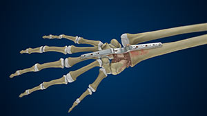 Total Wrist Arthrodesis